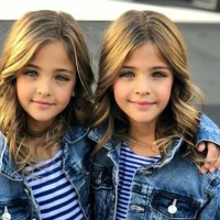 Identical Sisters Have Grown Up To Become 'Most Beautiful Twins In The World'